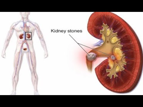 7 Unhealthy Habits Causing Kidney Stones And Their ...