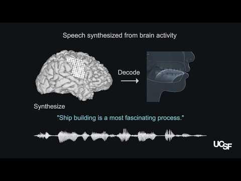 Implante transforma sinais cerebrais em fala sintetizada