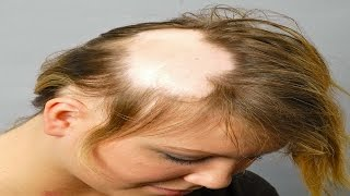 How to Deal With Baldness in Women