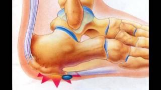 видео Болезнь Шинца у детей: причины, симптомы, методы лечения