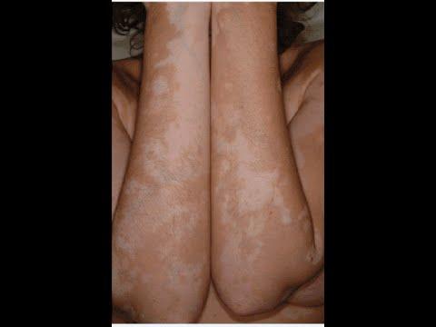 Lösung bei Vitiligo der Weißflecken-Krankheit - YouTube
