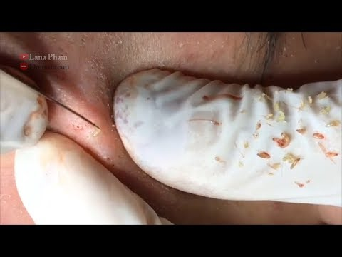 Repeat Eps #03:How to Remove Blackheads & Whiteheads on