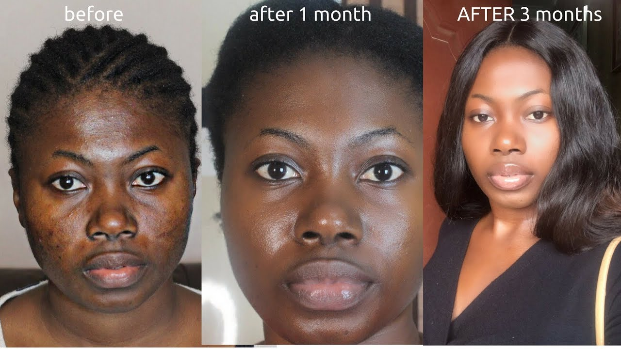 Remedies for uneven skin tone on face