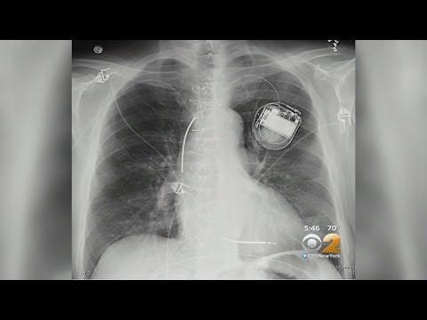 Can Pacemakers Be Hacked?