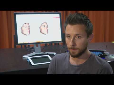 3D tool predicts result of nose job more accurately