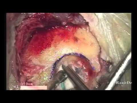 Костный воск (Bone wax)