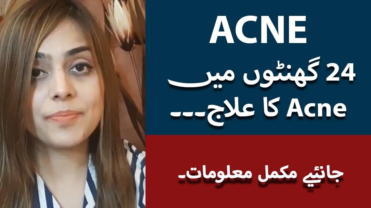 Acne Ka Ilaj In Urdu/Hindi | How To Remove Pimples Overnight | Acne Treatment | Dr. Amna Rasul