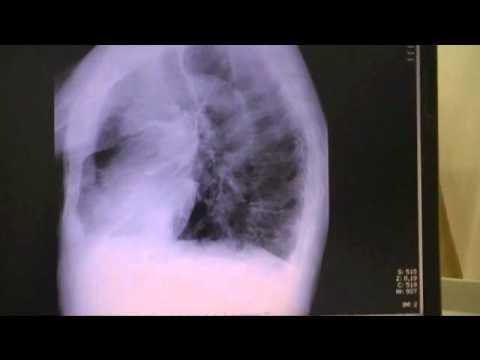 neumopatia obstructiva cronica slideshare