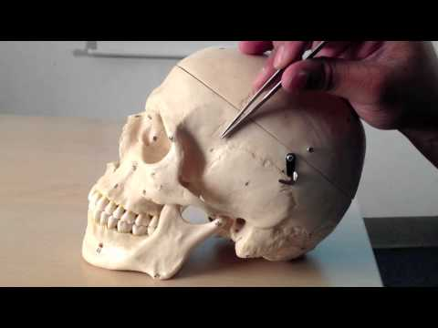 Skull Anatomy (1 of 5): Superior, Posterior and Lateral Views -- Head and Neck Anatomy 101