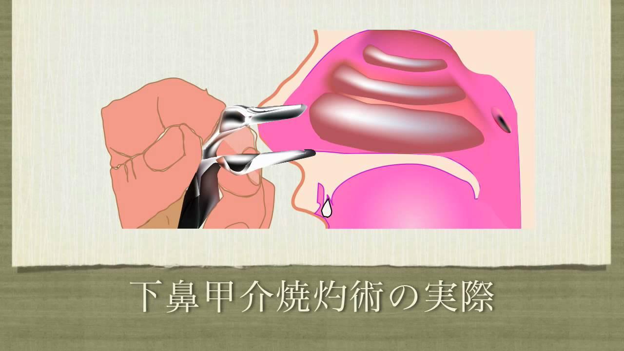 が た 鼻 とき 詰まっ