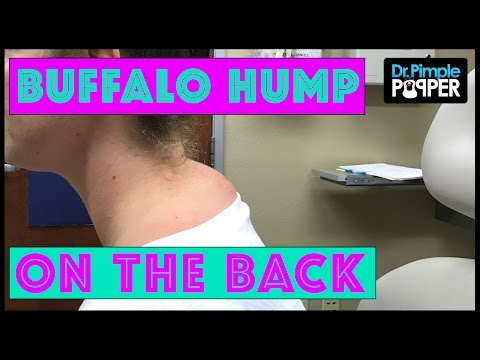 """Not A TRUE """"Buffalo Hump"""" Lipoma With Dr Pimple Popper"""