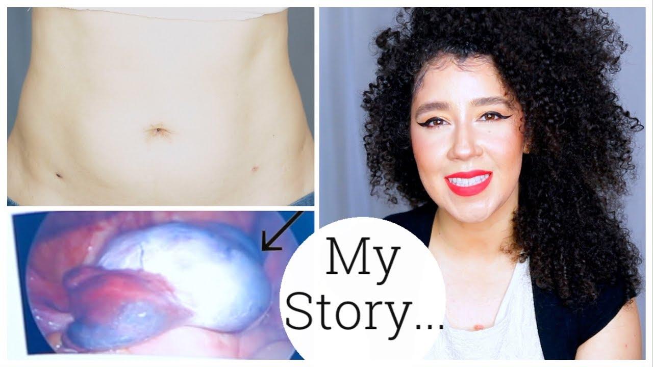 I'm Back! | My Ovarian Cyst Story | Ovarian Torsion | Laparoscopy Surgery
