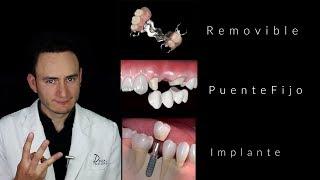 Puentes vs Implantes | ¿Cuál es la mejor opción? | Dentista en Querétaro