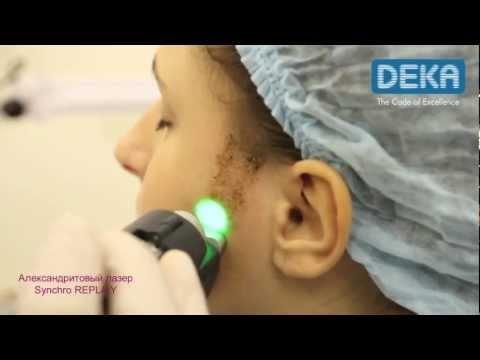 Лазерная эпиляция Александрит DEKA