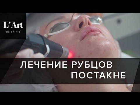 Лечение рубцов постакне. СВЕРХЭФФЕКТИВНЫЙ лазер  PicoSure поможет в лечении рубцов постакне.