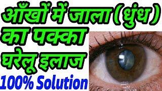 आँखों में जाला(धुंध),लाली और दर्द का आसान घरेलू इलाज | Ankho Me Jala Dhundh Lali Dard Ka Upay Hindi