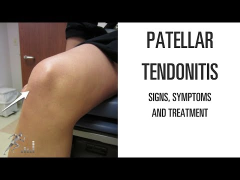 Patellar tendinitis: Signs, symptoms and remedies for this difficult knee problem