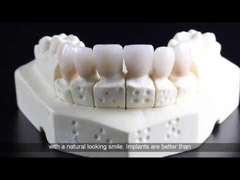 dental-implant-insurance
