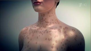 видео Аллергия на витамины - симптомы, лечение, фото