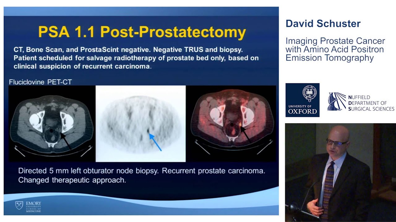 radioimmunoscintigraphy using prostascint capromab pendetide essay Bibliography elgamal aa, troychak mj, murphy gp (1998) prostascint scan may enhance identification of prostate cancer recurrences after prostatectomy, radiation, or hormone therapy: analysis of 136 scans of 100 patients.