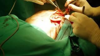 Face Lifting (Lifting twarzy) - Klinika Chirurgii Plastycznej Este l'arte z Łodzi