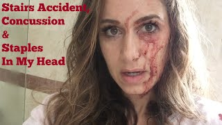 I Fell Down the Stairs: Concussion & Staples in My Head