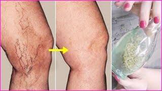 A devido varizes doloridas pernas