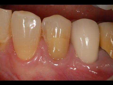 Glass Ionomer Cervical Restoration