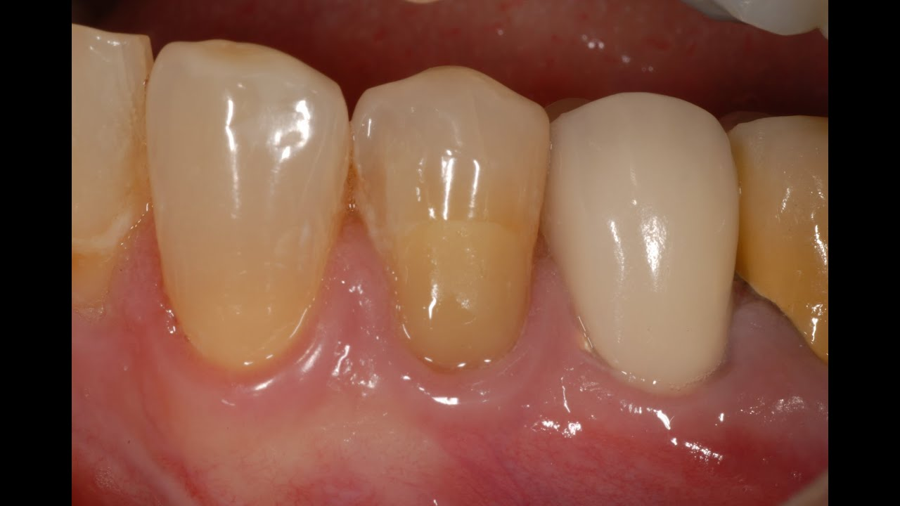 glass ionomer cement thesis Evaluates mechanical properties and clinical durability of the harder than resin-modified glass ionomer cement but within the this thesis is based on.