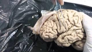 Gyrus frontal lobe