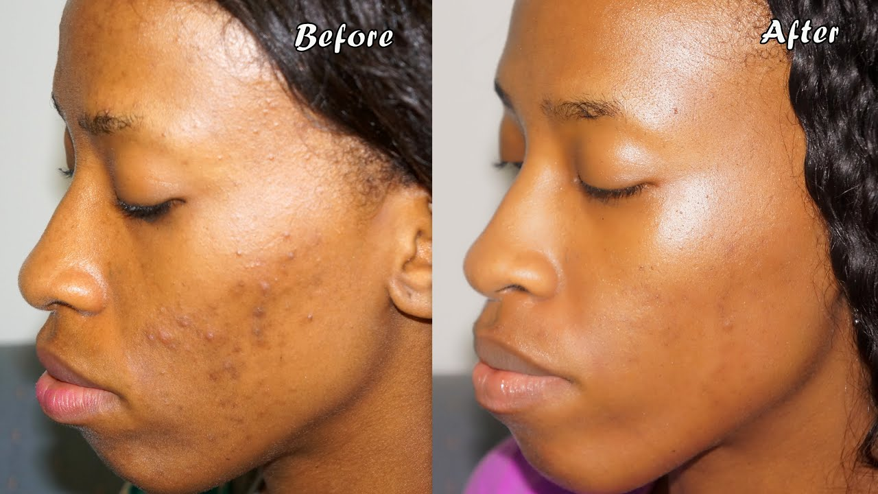 How i got rid of my acne causes skin care routine many tips how i got rid of my acne causes skin care routine many tips highly requested youtube ccuart Gallery