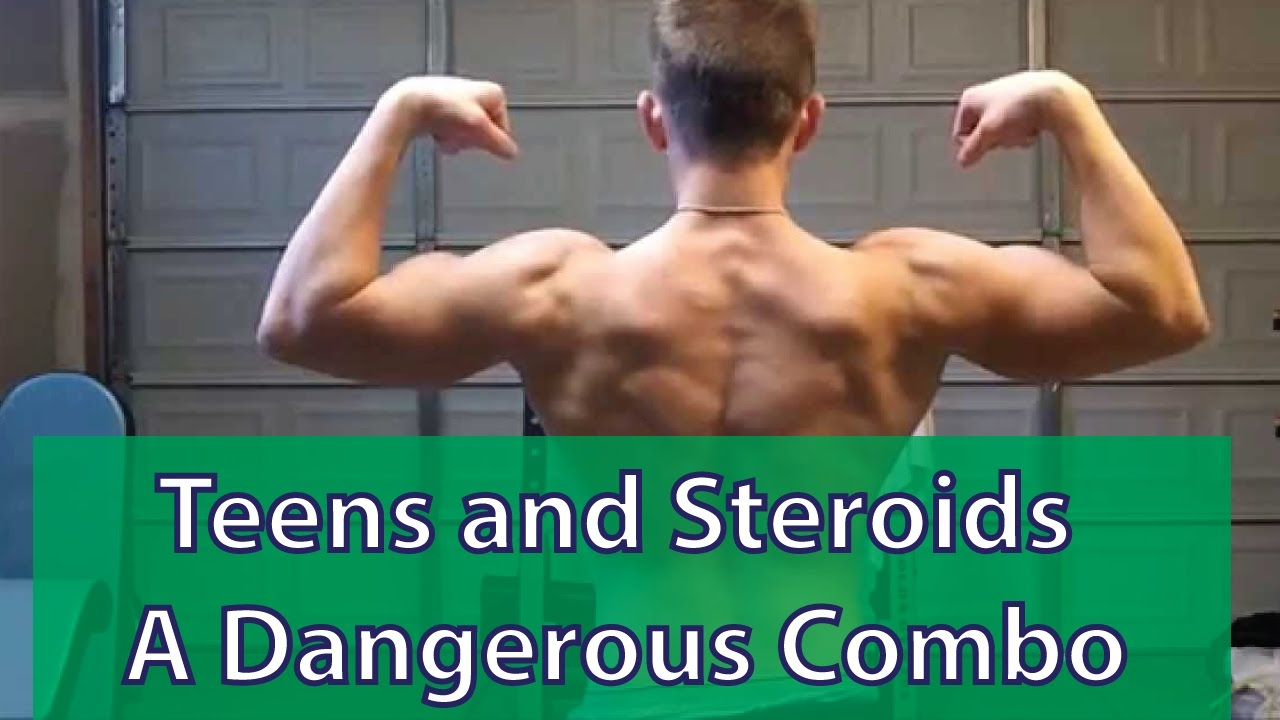 Teens and anabolic roids