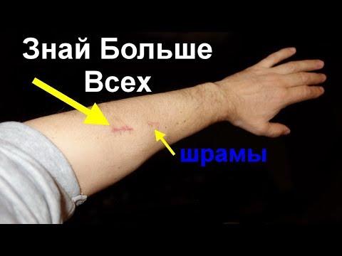 Лечение Фольгой шрамов и рубцов. Серебряные мостики и фольга убирают шрамы и рубцы