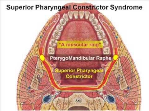 Superior-Pharyngeal-Constrictor-Syndrome.flv - YouTube