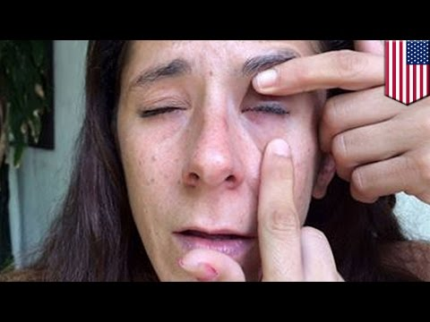 Super glue in eye: Florida woman nearly blinded after accidentally gluing her eye shut - TomoNews