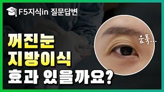 [F5지식in] 눈두덩이꺼짐에는 꺼진 눈 지방이식? 눈…