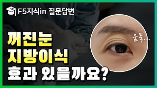 [F5지식in] 눈두덩…
