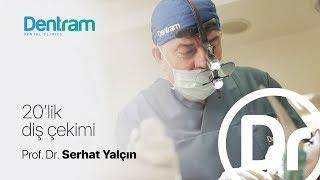 20'Lik Diş Çekimi - Prof. Dr. Serhat Yalçın