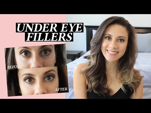 Under Eye Injections: My Facial Fillers Experience, Cost