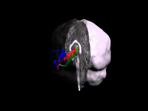 Key white matter pathways for episodic memory