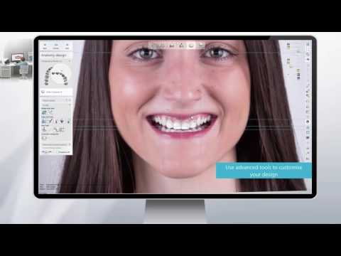 3Shape RealView™ Engine - Next Generation 3D Digital Smile Design