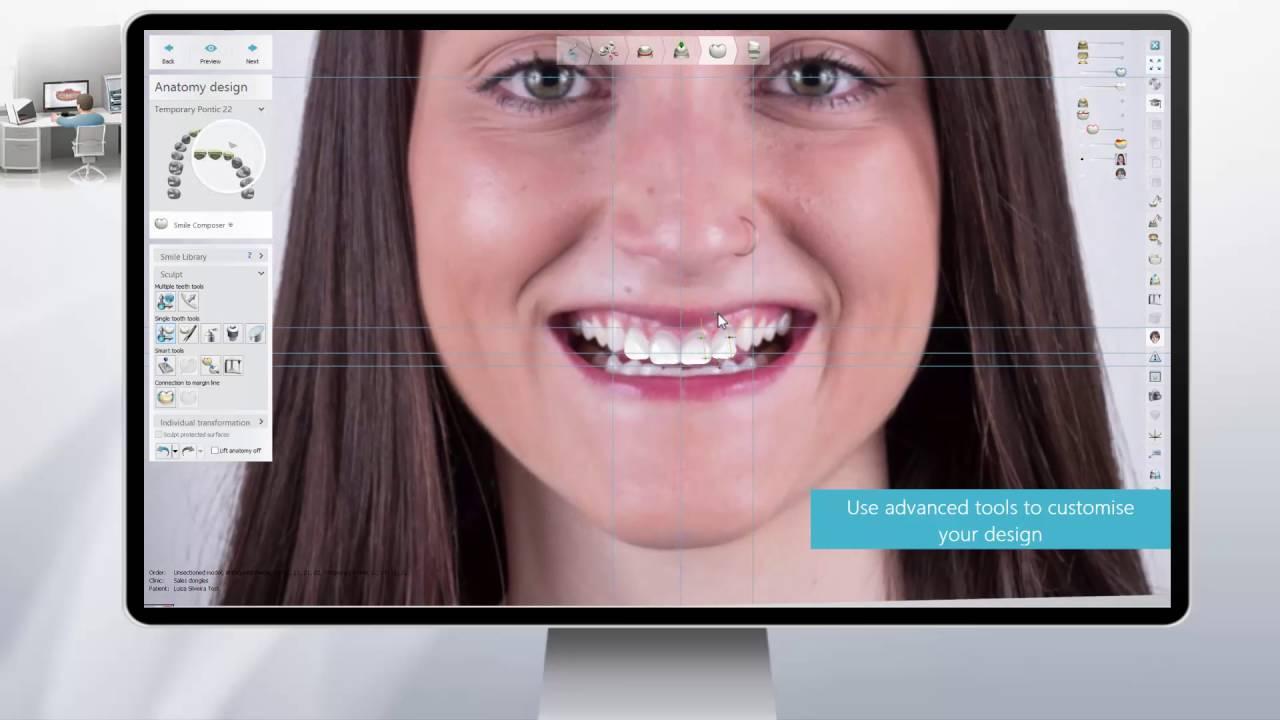Digital | Prodent Dental Laboratory