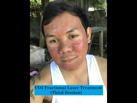 CO2 fractional laser (3rd session) @ the beauty empire manila