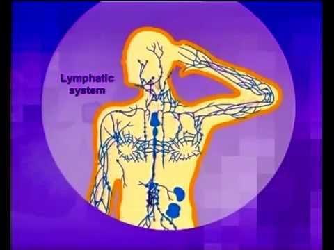 Kanker Kelenjar Getah Bening ( Limfoma ) - YouTube