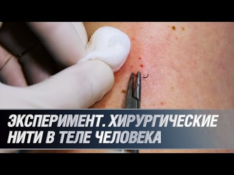 Эксперимент. Хирургические нити в теле человека