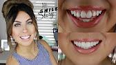 Do it yourself tooth veneer kit youtube 1659 solutioingenieria Choice Image
