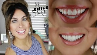 How I got a PERFECT AFFORDABLE SMILE in 2 weeks at HOME  | Press on Veneers