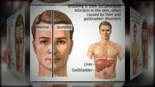 Cirrhosis Of The Liver Information