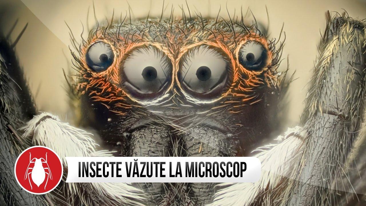 Papillom mikroszkóp. Hol találkozhatunk HPV-vel?