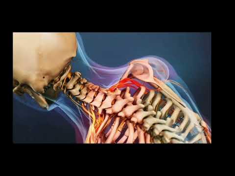 ciri ciri syaraf kejepit pada leher